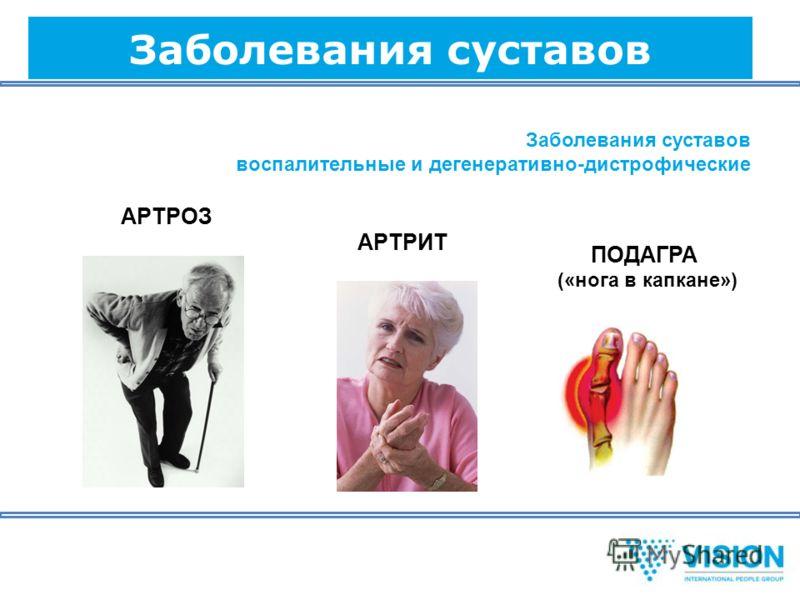 Заболевания суставов воспалительные и дегенеративно-дистрофические АРТРОЗ АРТРИТ ПОДАГРА («нога в капкане»)