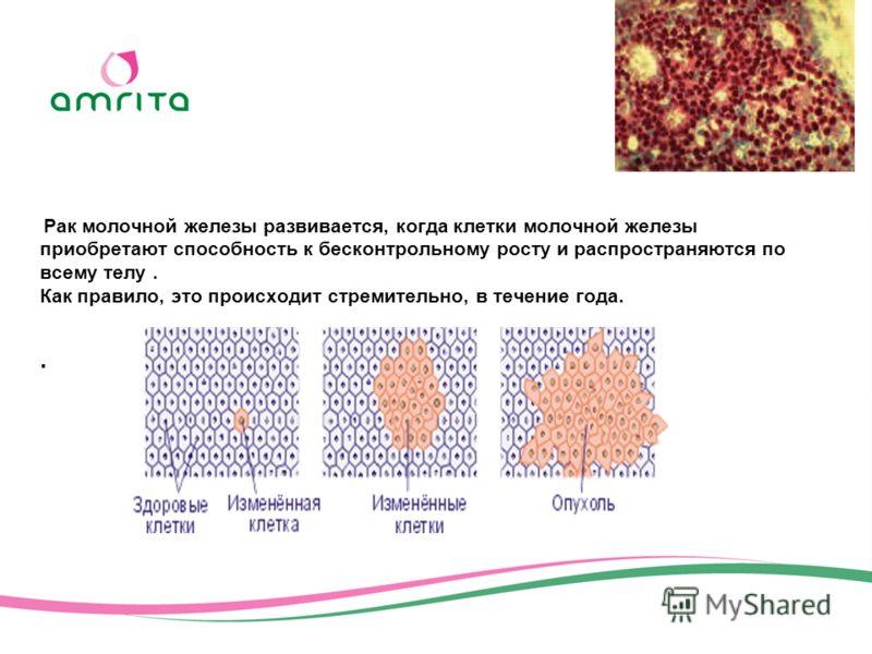 Рак молочной железы развивается, когда клетки молочной железы приобретают способность к бесконтрольному росту и распространяются по всему телу. Как правило, это происходит стремительно, в течение года..
