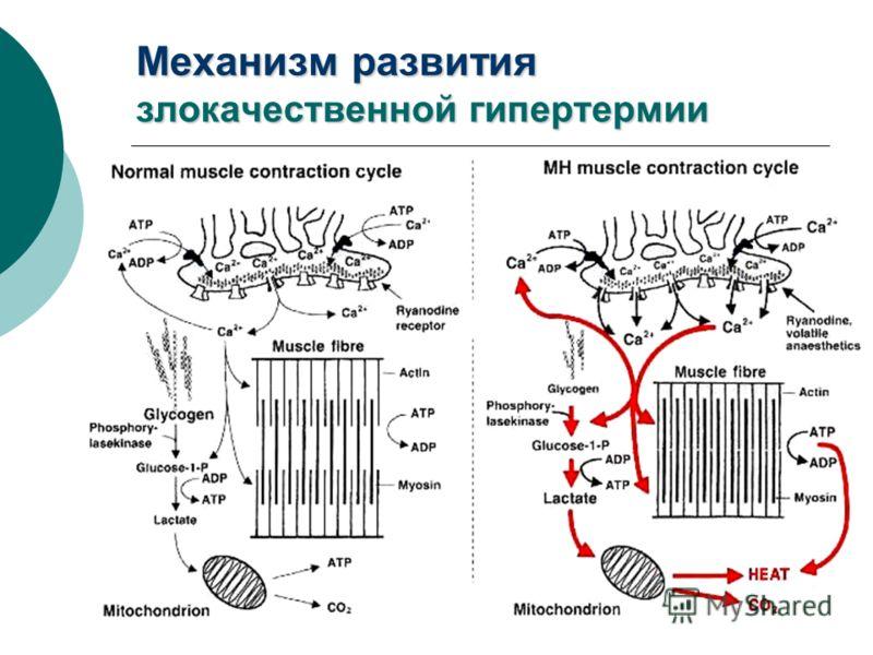 Механизм развития злокачественной гипертермии