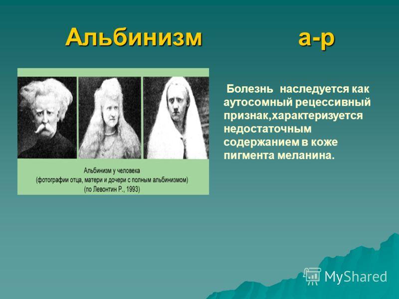 Альбинизм а-р Болезнь наследуется как аутосомный рецессивный признак,характеризуется недостаточным содержанием в коже пигмента меланина.