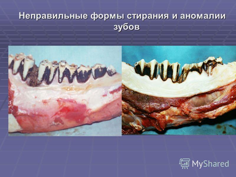 Неправильные формы стирания и аномалии зубов