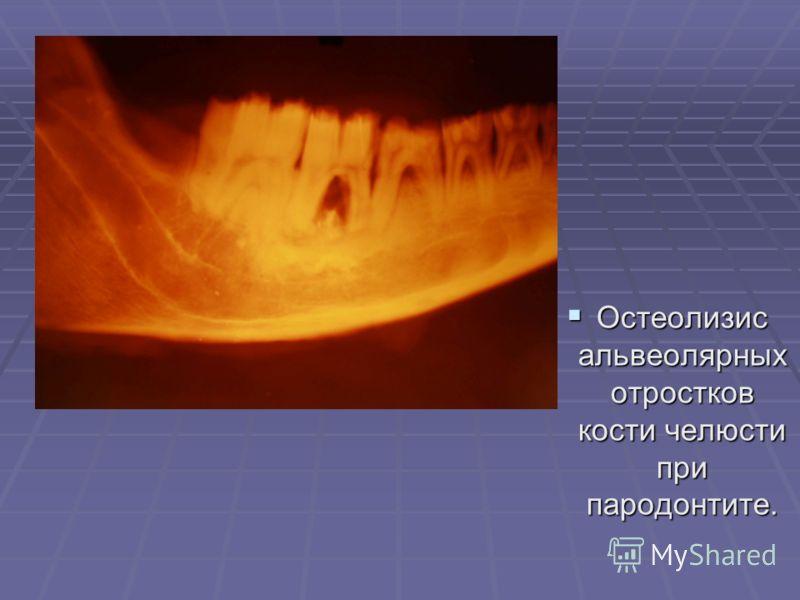 Остеолизис альвеолярных отростков кости челюсти при пародонтите. Остеолизис альвеолярных отростков кости челюсти при пародонтите.