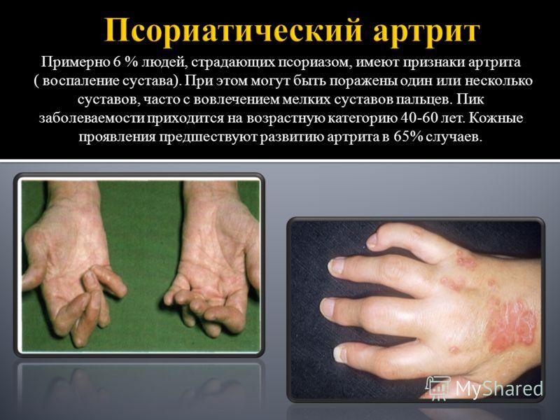 Примерно 6 % людей, страдающих псориазом, имеют признаки артрита ( воспаление сустава). При этом могут быть поражены один или несколько суставов, часто с вовлечением мелких суставов пальцев. Пик заболеваемости приходится на возрастную категорию 40-60