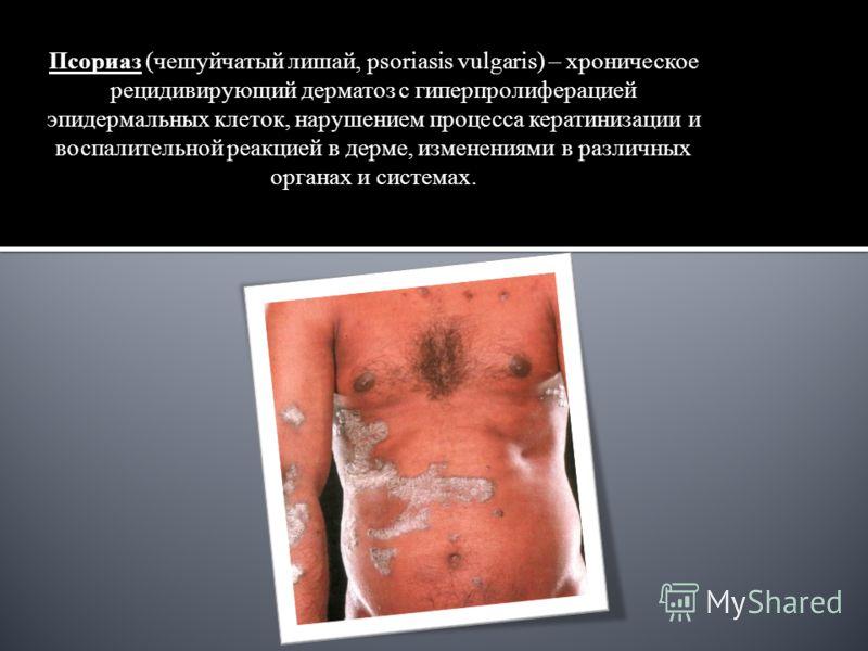 Псориаз (чешуйчатый лишай, psoriasis vulgaris) – хроническое рецидивирующий дерматоз с гиперпролиферацией эпидермальных клеток, нарушением процесса кератинизации и воспалительной реакцией в дерме, изменениями в различных органах и системах.