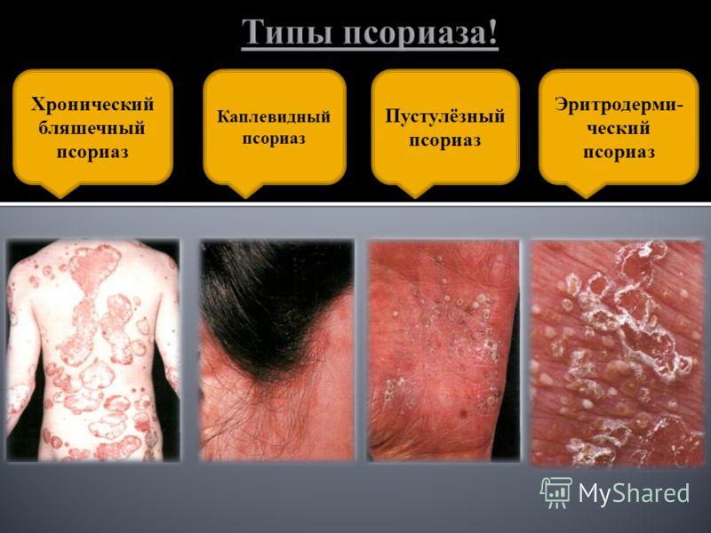 Хронический бляшечный псориаз Каплевидный псориаз Пустулёзный псориаз Эритродерми- ческий псориаз