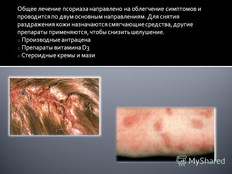 Общее лечение псориаза направлено на облегчение симптомов и проводится по двум основным направлениям. Для снятия раздражения кожи назначаются смягчающие средства, другие препараты применяются, чтобы снизить шелушение. o Производные антрацена o Препар