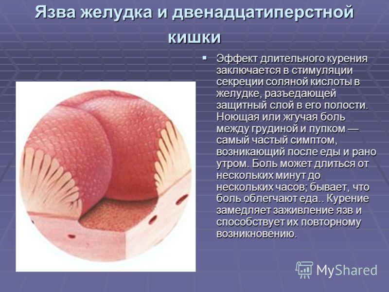 Язва желудка и двенадцатиперстной кишки Эффект длительного курения заключается в стимуляции секреции соляной кислоты в желудке, разъедающей защитный слой в его полости. Ноющая или жгучая боль между грудиной и пупком самый частый симптом, возникающий