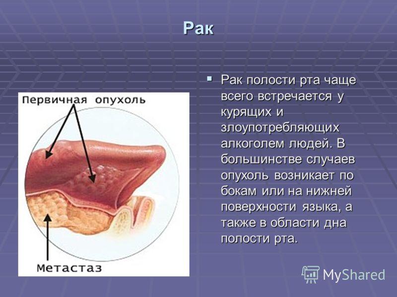 Рак Рак полости рта чаще всего встречается у курящих и злоупотребляющих алкоголем людей. В большинстве случаев опухоль возникает по бокам или на нижней поверхности языка, а также в области дна полости рта. Рак полости рта чаще всего встречается у кур