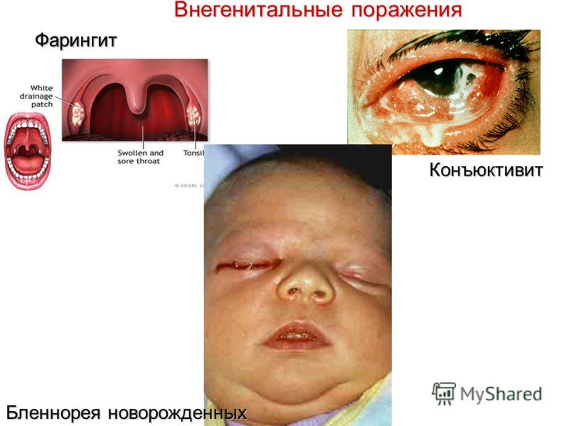 Фарингит Фарингит Бленнорея новорожденных Конъюктивит Внегенитальные поражения