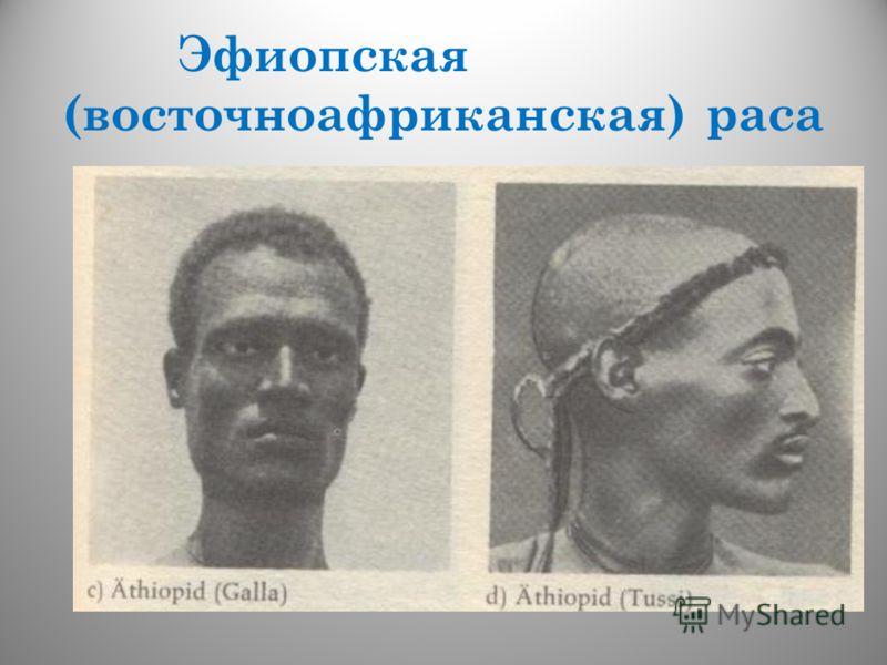 Эфиопская (восточноафриканская) раса