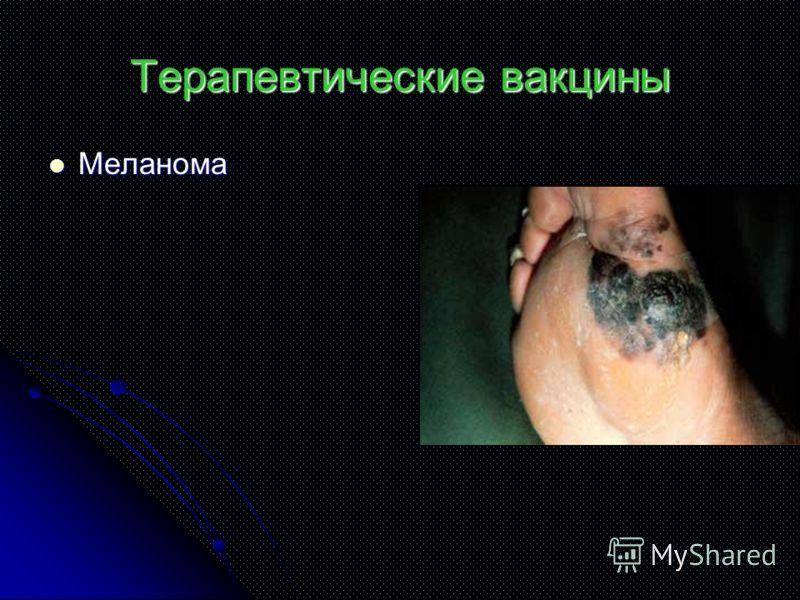 Терапевтические вакцины Меланома Меланома