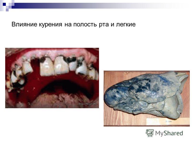 Влияние курения на полость рта и легкие