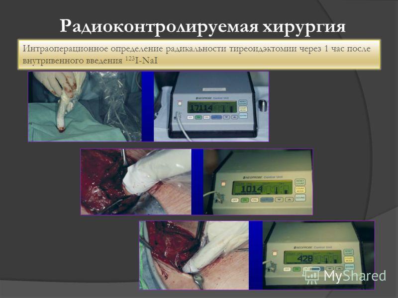 Радиоконтролируемая хирургия Интраоперационное определение радикальности тиреоидэктомии через 1 час после внутривенного введения 123 I-NaI