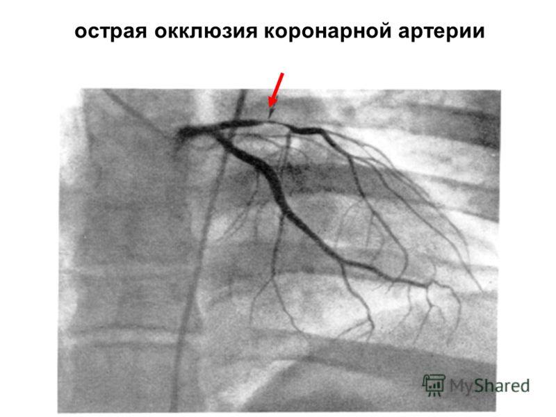 острая окклюзия коронарной артерии