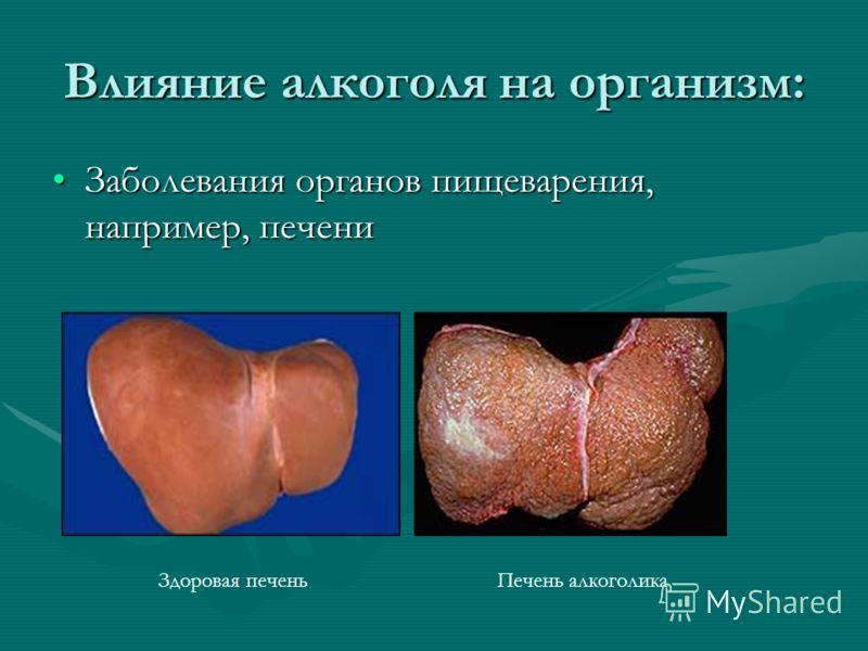Влияние алкоголя на организм: Заболевания органов пищеварения, например, печениЗаболевания органов пищеварения, например, печени Здоровая печеньПечень алкоголика