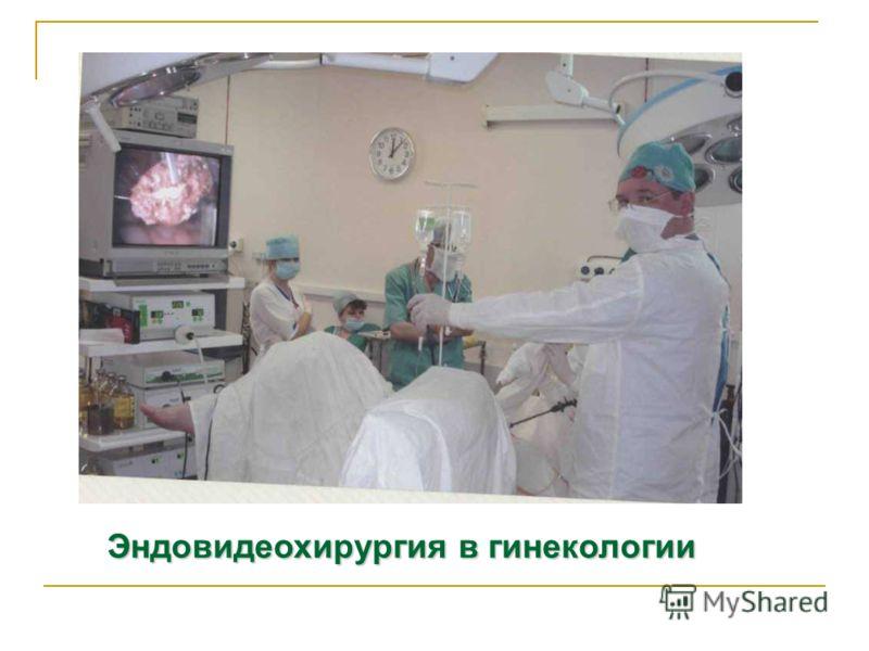 Эндовидеохирургия в гинекологии