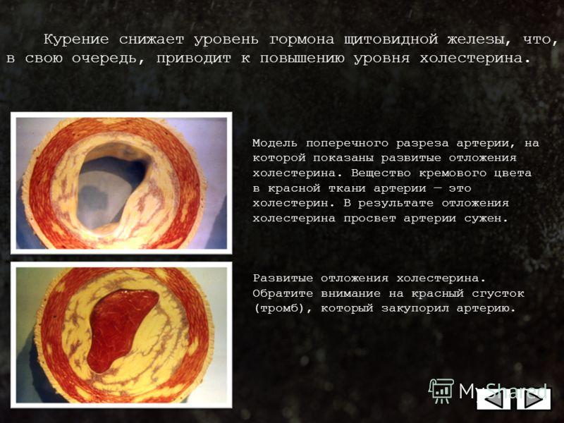 Модель поперечного разреза артерии, на которой показаны развитые отложения холестерина. Вещество кремового цвета в красной ткани артерии это холестерин. В результате отложения холестерина просвет артерии сужен. Развитые отложения холестерина. Обратит