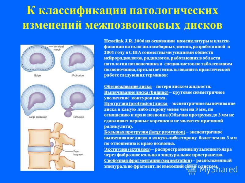 К классификации патологических изменений межпозвонковых дисков Hesselink J.R. 2006 на основании номенклатуры и класси- фикации патологии люмбарных дисков, разработанной в 2001 году в США совместными усилиями обществ нейрорадиологов, радиологов, работ