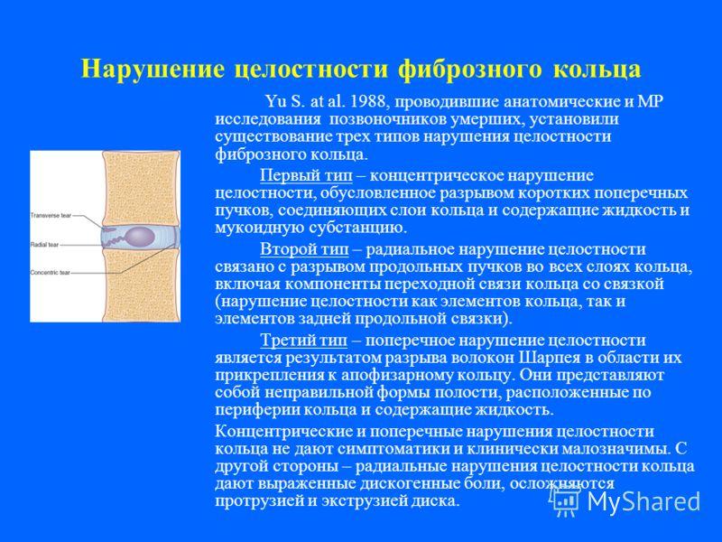 Нарушение целостности фиброзного кольца Yu S. at al. 1988, проводившие анатомические и МР исследования позвоночников умерших, установили существование трех типов нарушения целостности фиброзного кольца. Первый тип – концентрическое нарушение целостно