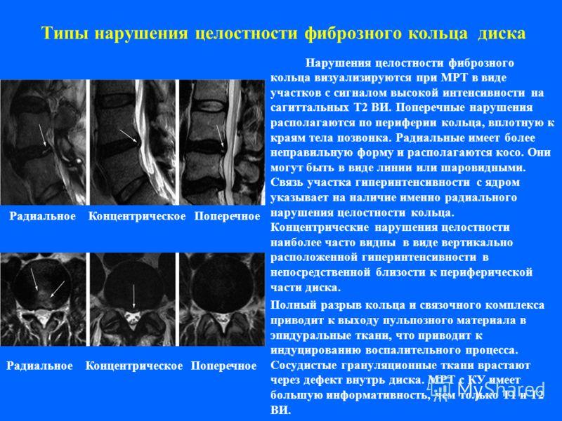 Типы нарушения целостности фиброзного кольца диска Нарушения целостности фиброзного кольца визуализируются при МРТ в виде участков с сигналом высокой интенсивности на сагиттальных Т2 ВИ. Поперечные нарушения располагаются по периферии кольца, вплотну