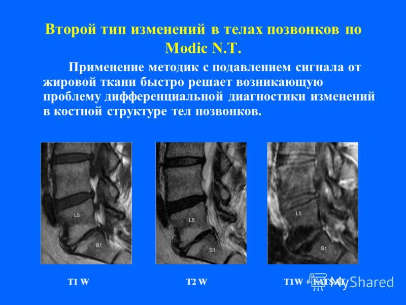 Второй тип изменений в телах позвонков по Modic N.T. Применение методик с подавлением сигнала от жировой ткани быстро решает возникающую проблему дифференциальной диагностики изменений в костной структуре тел позвонков. T1 W T2 W T1W + FATSAT