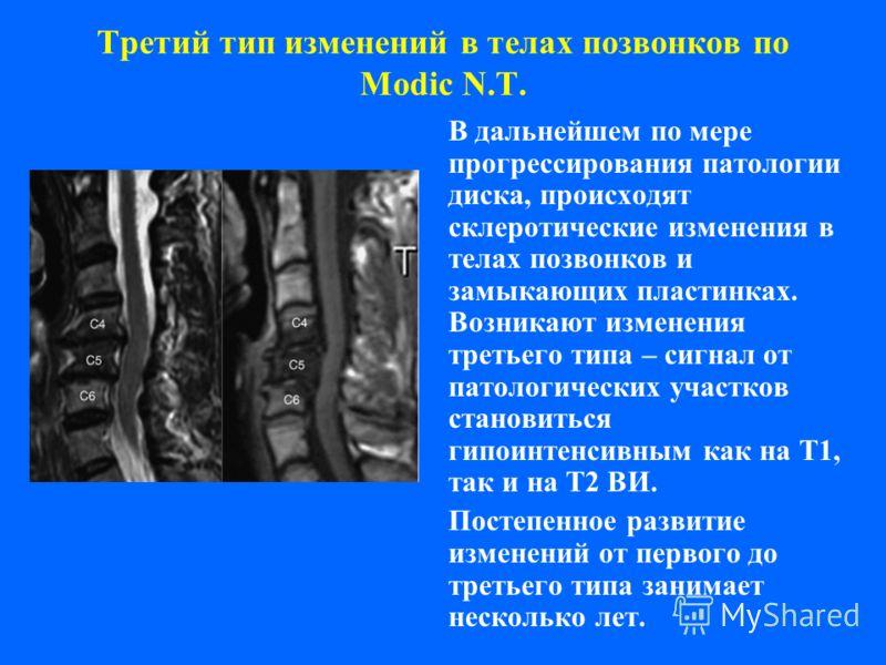 Третий тип изменений в телах позвонков по Modic N.T. В дальнейшем по мере прогрессирования патологии диска, происходят склеротические изменения в телах позвонков и замыкающих пластинках. Возникают изменения третьего типа – сигнал от патологических уч