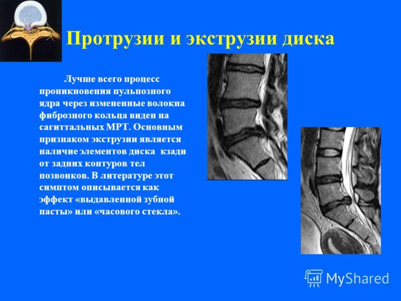 Протрузии и экструзии диска Лучше всего процесс проникновения пульпозного ядра через измененные волокна фиброзного кольца виден на сагиттальных МРТ. Основным признаком экструзии является наличие элементов диска кзади от задних контуров тел позвонков.