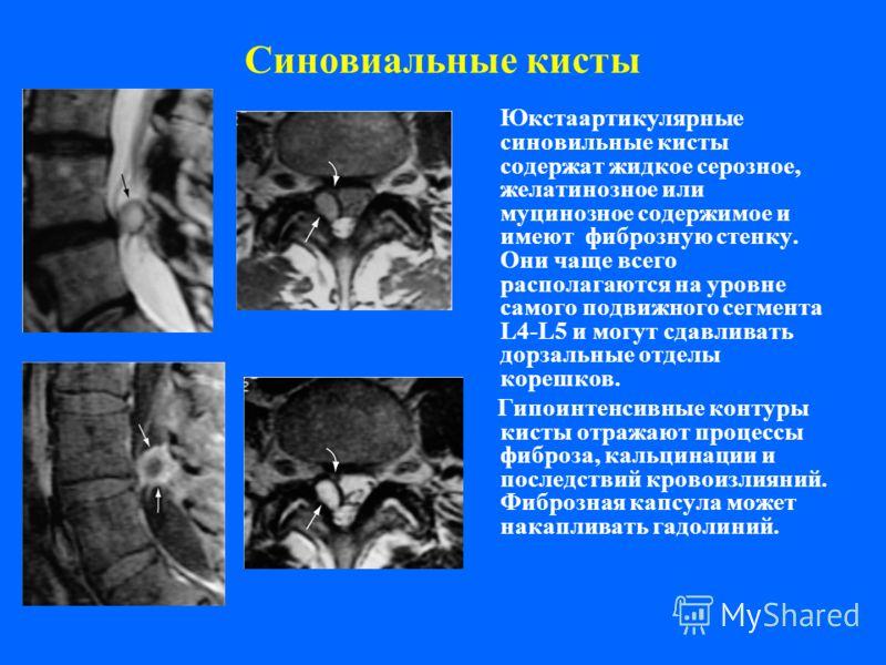 Синовиальные кисты Юкстаартикулярные синовильные кисты содержат жидкое серозное, желатинозное или муцинозное содержимое и имеют фиброзную стенку. Они чаще всего располагаются на уровне самого подвижного сегмента L4-L5 и могут сдавливать дорзальные от
