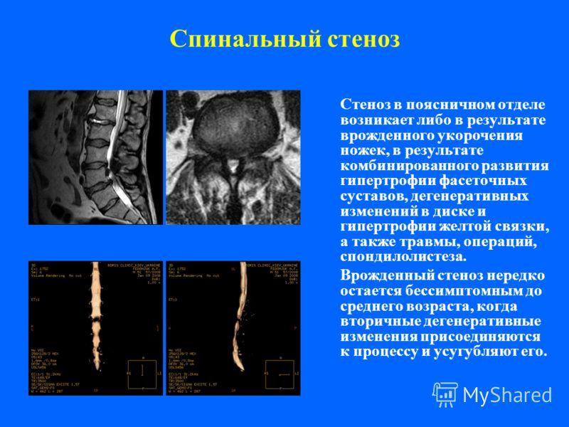 Спинальный стеноз Стеноз в поясничном отделе возникает либо в результате врожденного укорочения ножек, в результате комбинированного развития гипертрофии фасеточных суставов, дегенеративных изменений в диске и гипертрофии желтой связки, а также травм