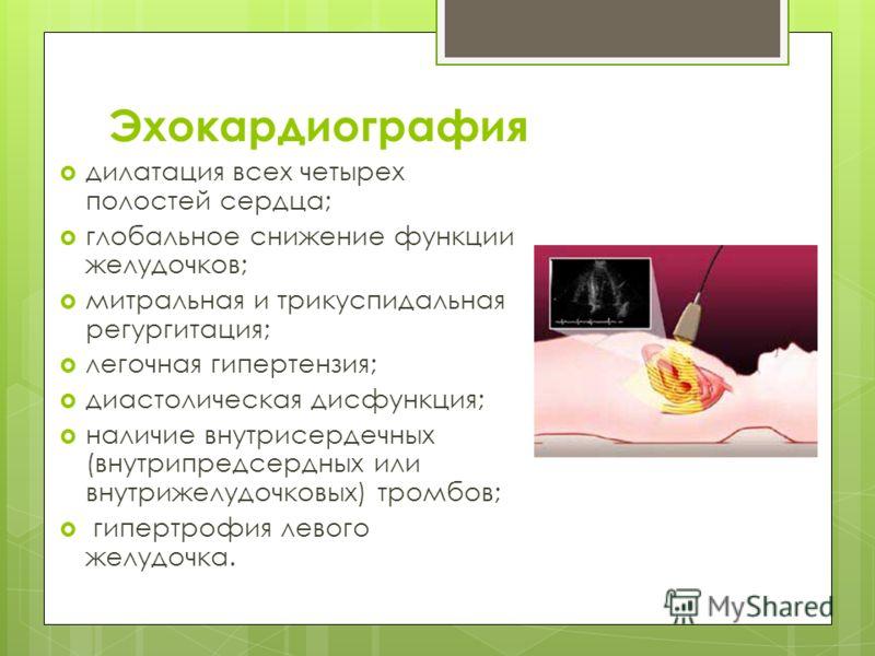 Эхокардиография дилатация всех четырех полостей сердца; глобальное снижение функции желудочков; митральная и трикуспидальная регургитация; легочная гипертензия; диастолическая дисфункция; наличие внутрисердечных (внутрипредсердных или внутрижелудочко