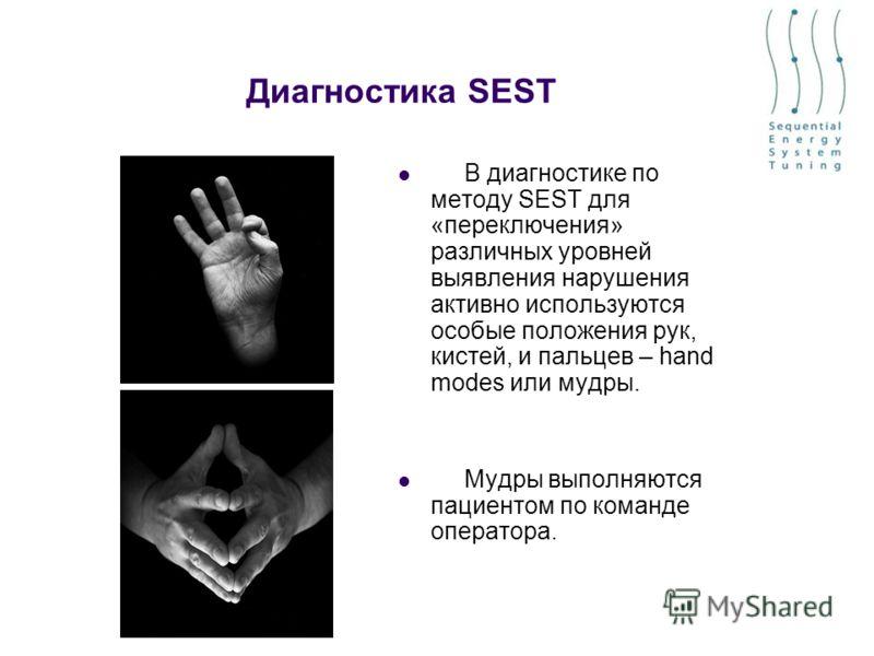 Диагностика SEST В диагностике по методу SEST для «переключения» различных уровней выявления нарушения активно используются особые положения рук, кистей, и пальцев – hand modes или мудры. Мудры выполняются пациентом по команде оператора.