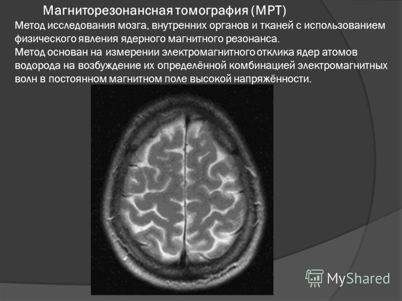 Магниторезонансная томография (МРТ) Метод исследования мозга, внутренних органов и тканей с использованием физического явления ядерного магнитного резонанса. Метод основан на измерении электромагнитного отклика ядер атомов водорода на возбуждение их