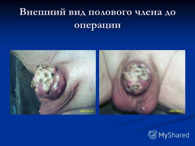 Внешний вид полового члена до операции