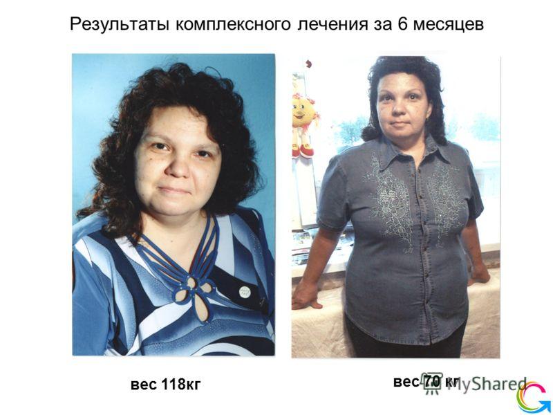 Результаты комплексного лечения за 6 месяцев вес 118 кг вес 70 кг