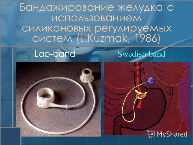 Lap-band Swedish band Бандажирование желудка с использованием силиконовых регулируемых систем (L.Kuzmak, 1986)