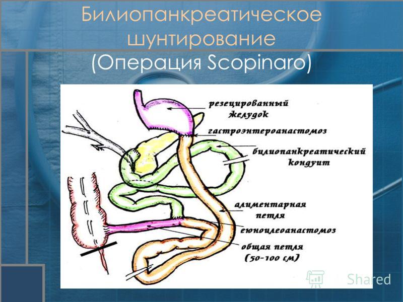 Билиопанкреатическое шунтирование (Операция Scopinaro)