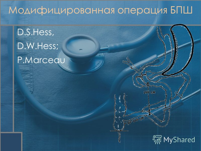 Модифицированная операция БПШ D.S.Hess, D.W.Hess; P.Marceau