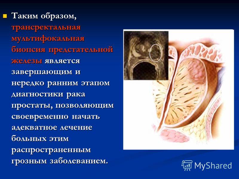 Таким образом, трансректальная мультифокальная биопсия предстательной железы является завершающим и нередко ранним этапом диагностики рака простаты, позволяющим своевременно начать адекватное лечение больных этим распространенным грозным заболеванием