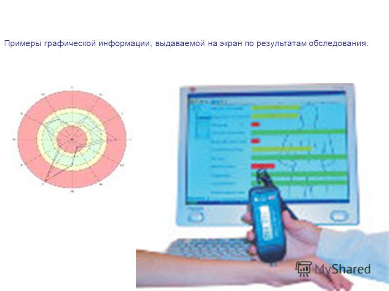 Примеры графической информации, выдаваемой на экран по результатам обследования.