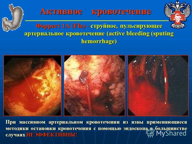 Активное кровотечение Форрест 1А (FIa) - струйное, пульсирующее артериальное кровотечение (active bleeding (sputing hemorrhage) При массивном артериальном кровотечении из язвы применяющиеся методики остановки кровотечения с помощью эндоскопа в больши