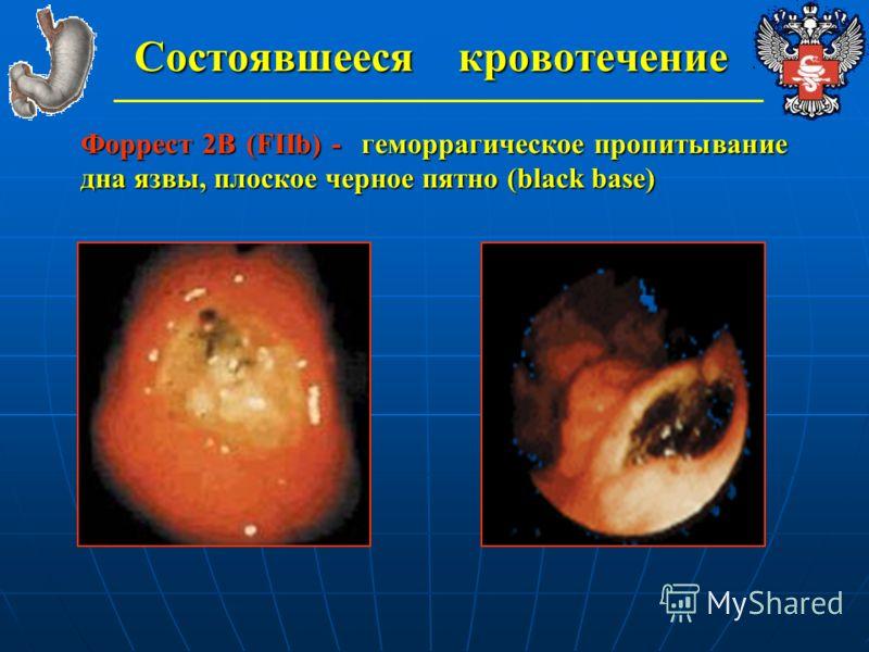 Состоявшееся кровотечение Форрест 2В (FIIb) - геморрагическое пропитывание дна язвы, плоское черное пятно (black base)