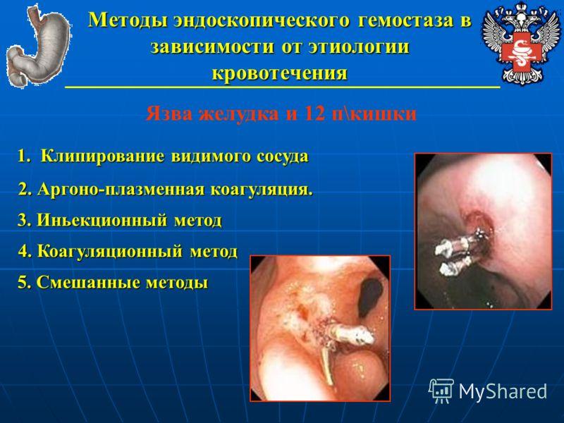 Методы эндоскопического гемостаза в зависимости от этиологии кровотечения Язва желудка и 12 п\кишки 1. Клипирование видимого сосуда 2. Аргоно-плазменная коагуляция. 3. Иньекционный метод 4. Коагуляционный метод 5. Смешанные методы