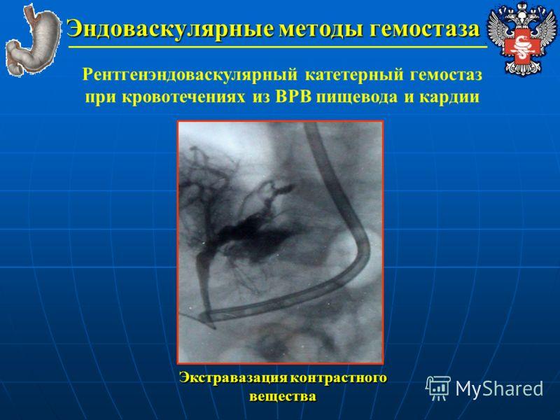 Эндоваскулярные методы гемостаза Рентгенэндоваскулярный катетерный гемостаз при кровотечениях из ВРВ пищевода и кардии Экстравазация контрастного вещества