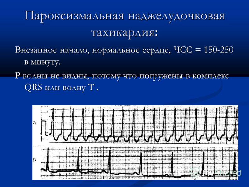 Пароксизмальная наджелудочковая тахикардия: Внезапное начало, нормальное сердце, ЧСС = 150-250 в минуту. P волны не видны, потому что погружены в комплекс QRS или волну T.
