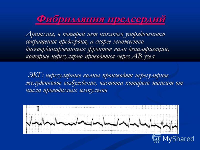 Фибрилляция предсердий Аритмия, в которой нет никакого упорядоченного сокращения предсердия, а скорее множество дискоординированных фронтов волн деполяризации, которые нерегулярно проводятся через АВ узел ЭКГ: нерегулярные волны производят нерегулярн