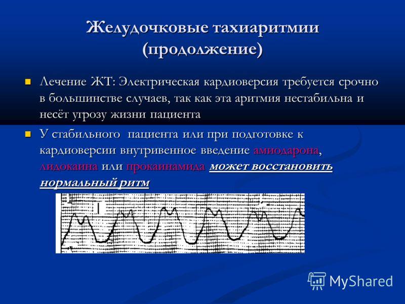 Желудочковые тахиаритмии (продолжение) Лечение ЖТ: Электрическая кардиоверсия требуется срочно в большинстве случаев, так как эта аритмия нестабильна и несёт угрозу жизни пациента Лечение ЖТ: Электрическая кардиоверсия требуется срочно в большинстве