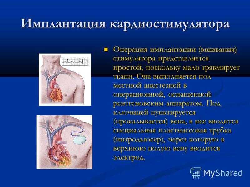 Имплантация кардиостимулятора Операция имплантации (вшивания) стимулятора представляется простой, поскольку мало травмирует ткани. Она выполняется под местной анестезией в операционной, оснащенной рентгеновским аппаратом. Под ключицей пунктируется (п