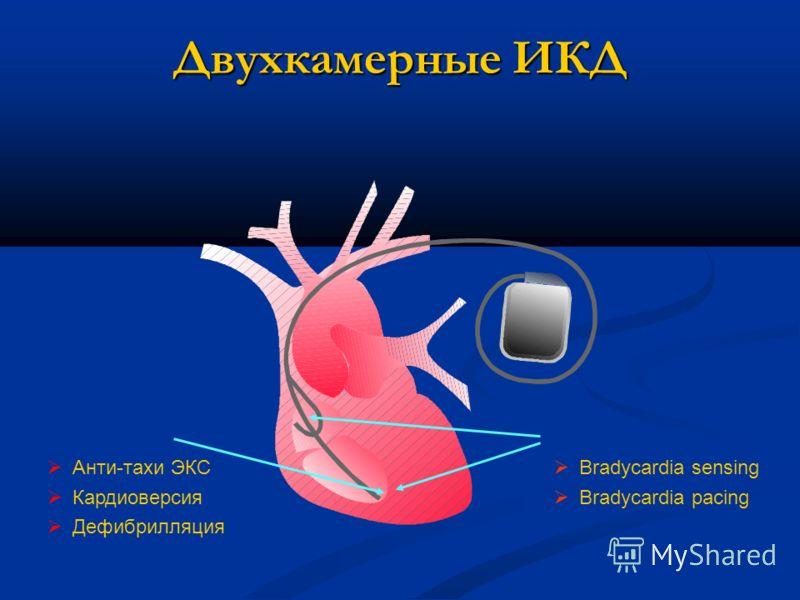 Предсердие + желудочек Желудочек Двухкамерные ИКД Анти-тахи ЭКС Кардиоверсия Дефибрилляция Bradycardia sensing Bradycardia pacing