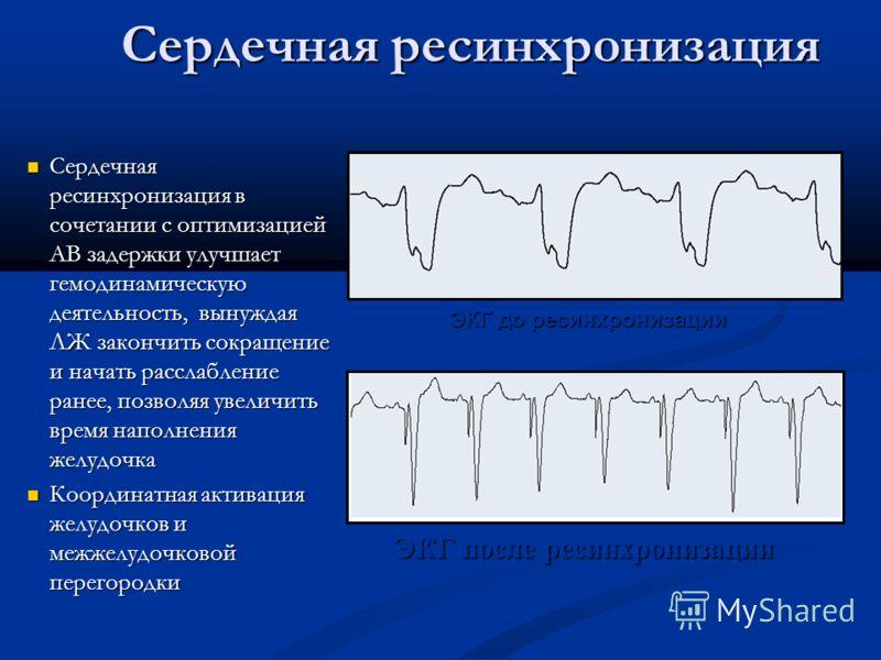 Сердечная ресинхронизация Сердечная ресинхронизация в сочетании с оптимизацией АВ задержки улучшает гемодинамическую деятельность, вынуждая ЛЖ закончить сокращение и начать расслабление ранее, позволяя увеличить время наполнения желудочка Сердечная р