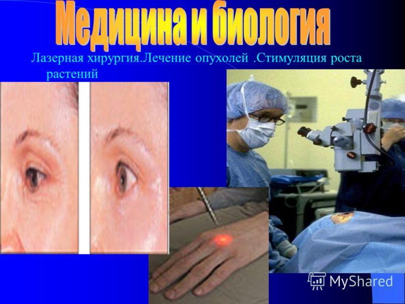 Лазерная хирургия.Лечение опухолей.Стимуляция роста растений